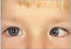 Example of Esotropia (lazy eye)